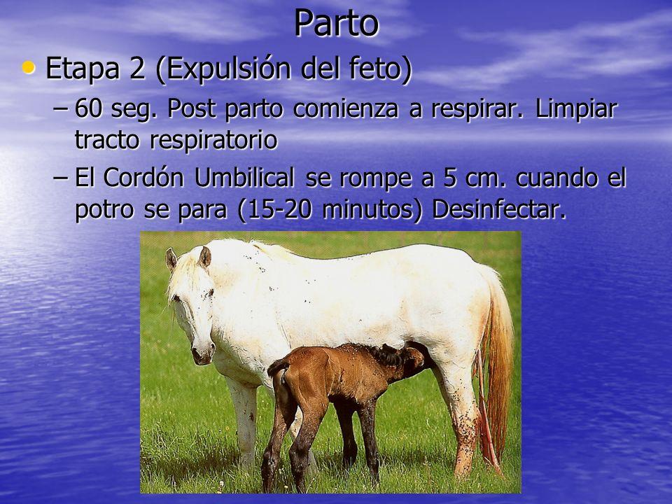 Parto Etapa 2 (Expulsión del feto)