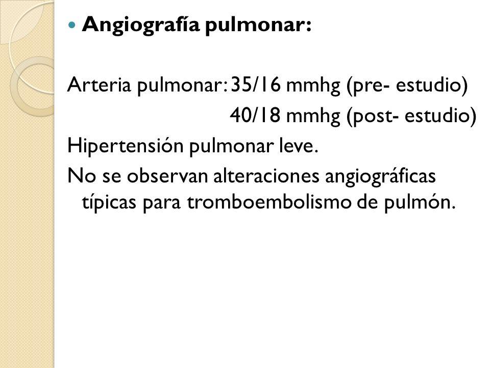 Angiografía pulmonar: