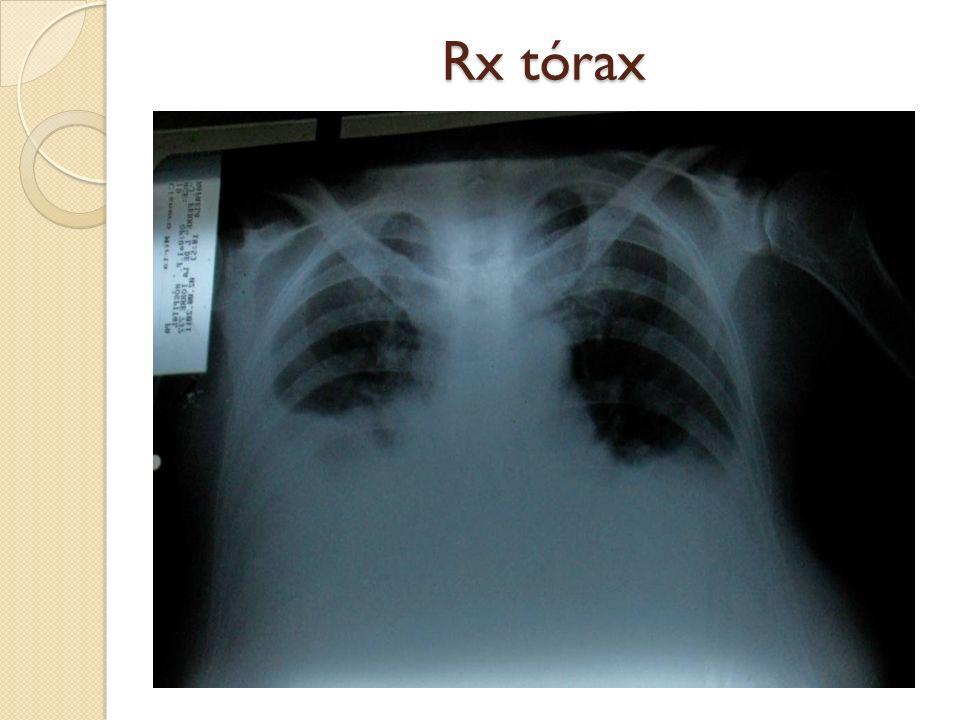 Rx tórax