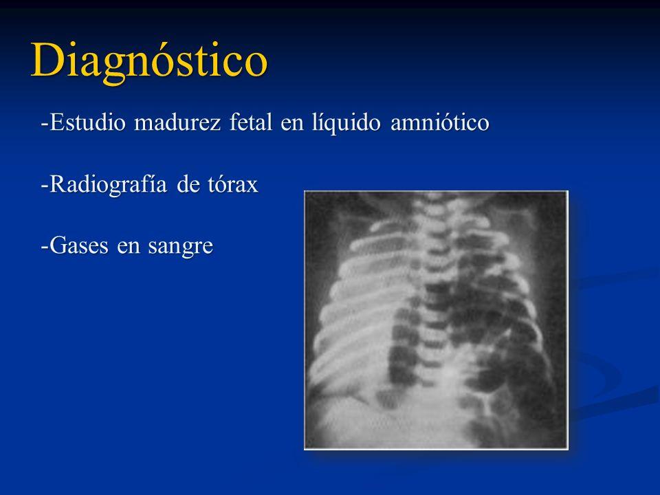 Diagnóstico Estudio madurez fetal en líquido amniótico