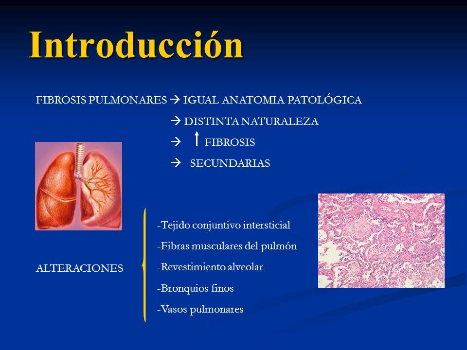 Introducción FIBROSIS PULMONARES  IGUAL ANATOMIA PATOLÓGICA