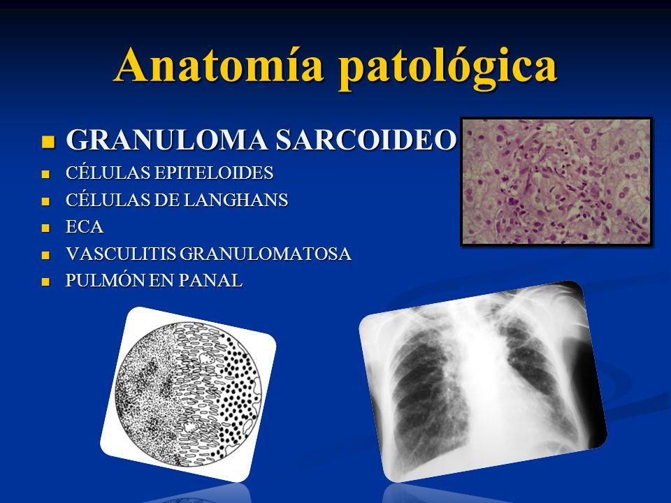 Anatomía patológica GRANULOMA SARCOIDEO CÉLULAS EPITELOIDES