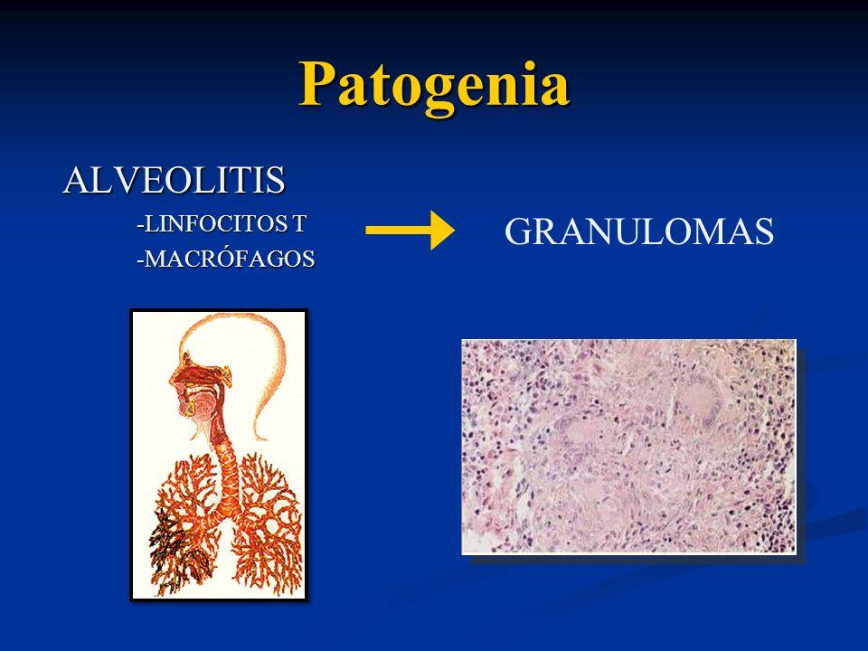 Patogenia ALVEOLITIS -LINFOCITOS T -MACRÓFAGOS GRANULOMAS