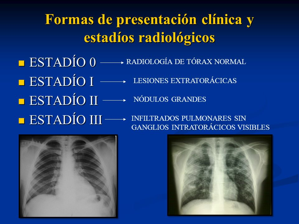 Formas de presentación clínica y estadíos radiológicos