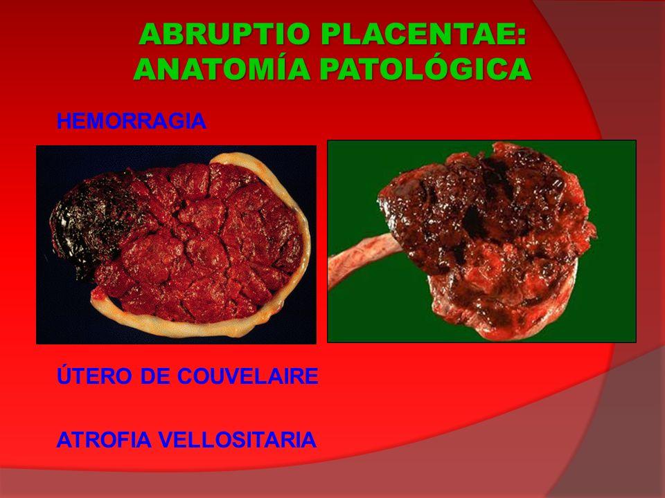 ABRUPTIO PLACENTAE: ANATOMÍA PATOLÓGICA