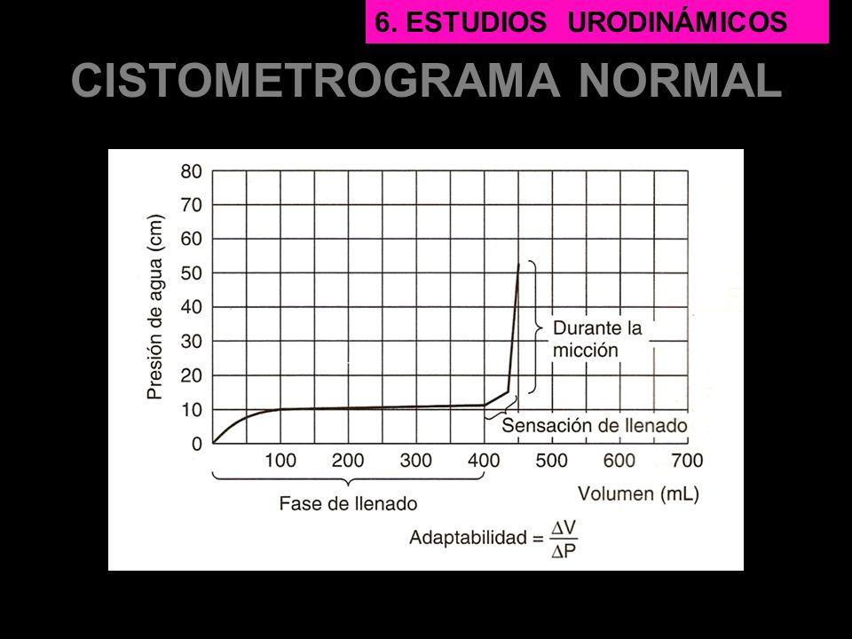 CISTOMETROGRAMA NORMAL