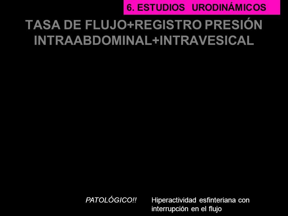 TASA DE FLUJO+REGISTRO PRESIÓN INTRAABDOMINAL+INTRAVESICAL