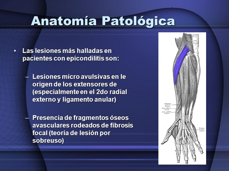 Anatomía Patológica Las lesiones más halladas en pacientes con epicondilitis son: