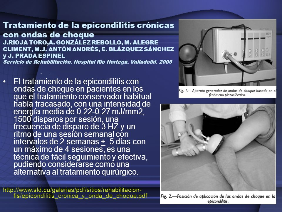 Tratamiento de la epicondilitis crónicas con ondas de choque J