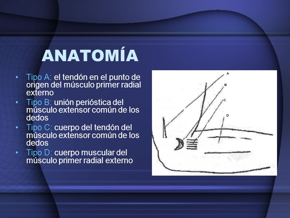 ANATOMÍA Tipo A: el tendón en el punto de origen del músculo primer radial externo. Tipo B: unión perióstica del músculo extensor común de los dedos.
