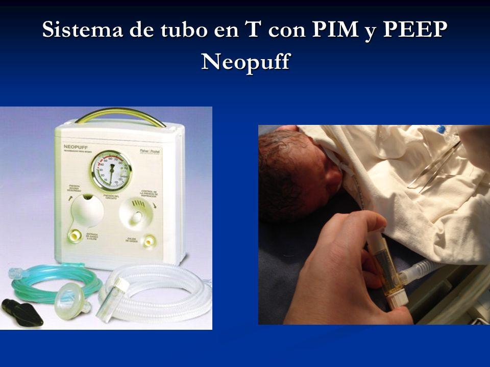 Sistema de tubo en T con PIM y PEEP Neopuff