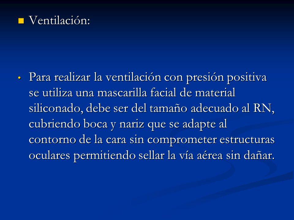 Ventilación: