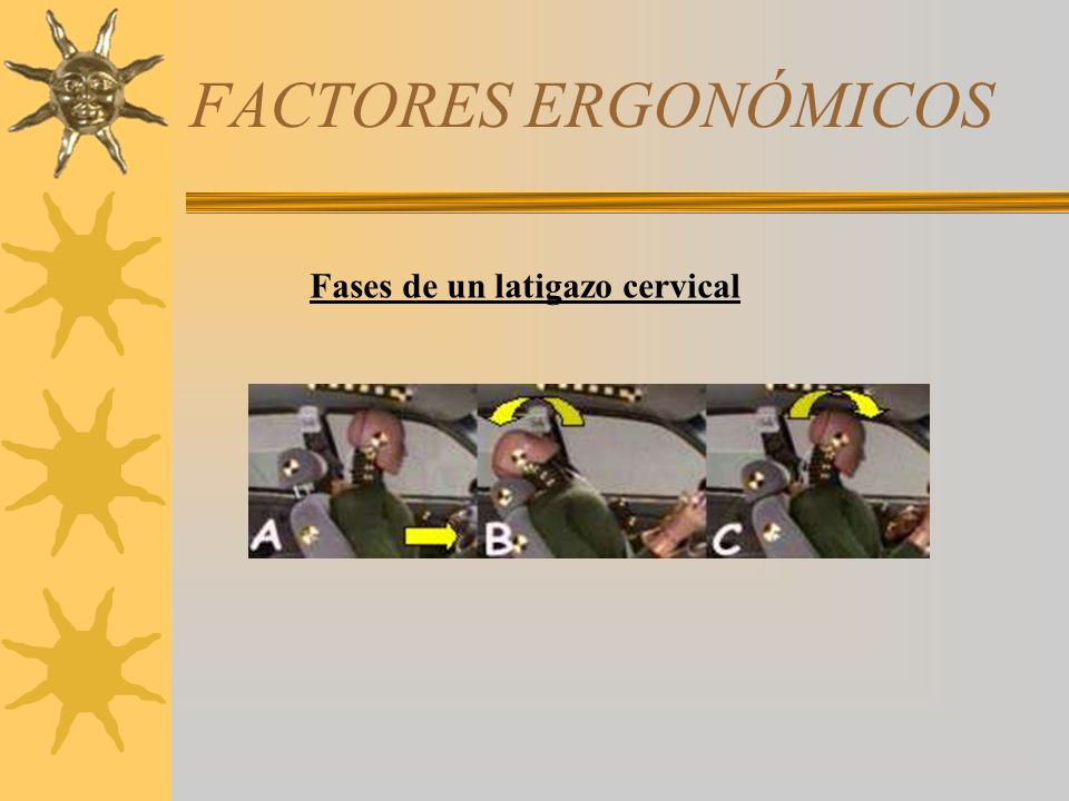 FACTORES ERGONÓMICOS Fases de un latigazo cervical