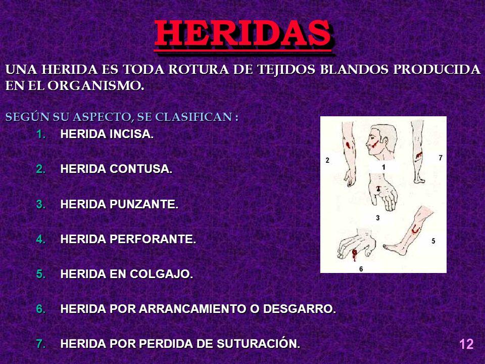 HERIDAS UNA HERIDA ES TODA ROTURA DE TEJIDOS BLANDOS PRODUCIDA EN EL ORGANISMO. SEGÚN SU ASPECTO, SE CLASIFICAN :