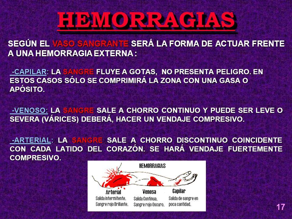 HEMORRAGIAS SEGÚN EL VASO SANGRANTE SERÁ LA FORMA DE ACTUAR FRENTE A UNA HEMORRAGIA EXTERNA :