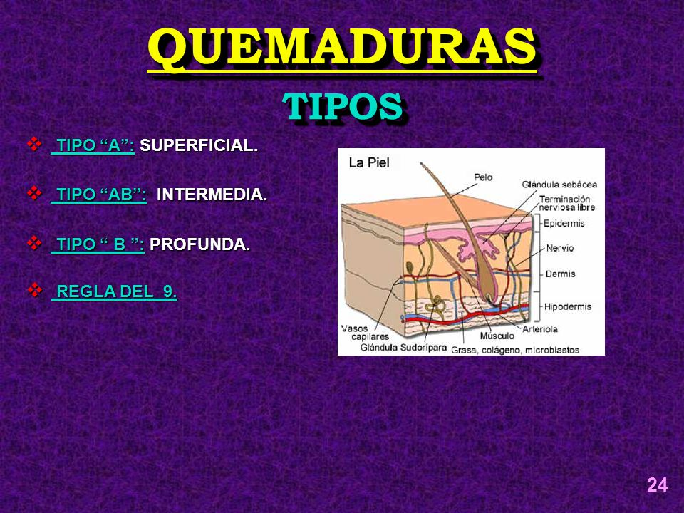 QUEMADURAS TIPOS 24 TIPO A : SUPERFICIAL. TIPO AB : INTERMEDIA.
