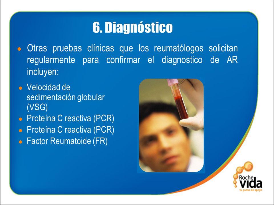 6. Diagnóstico Otras pruebas clínicas que los reumatólogos solicitan regularmente para confirmar el diagnostico de AR incluyen: