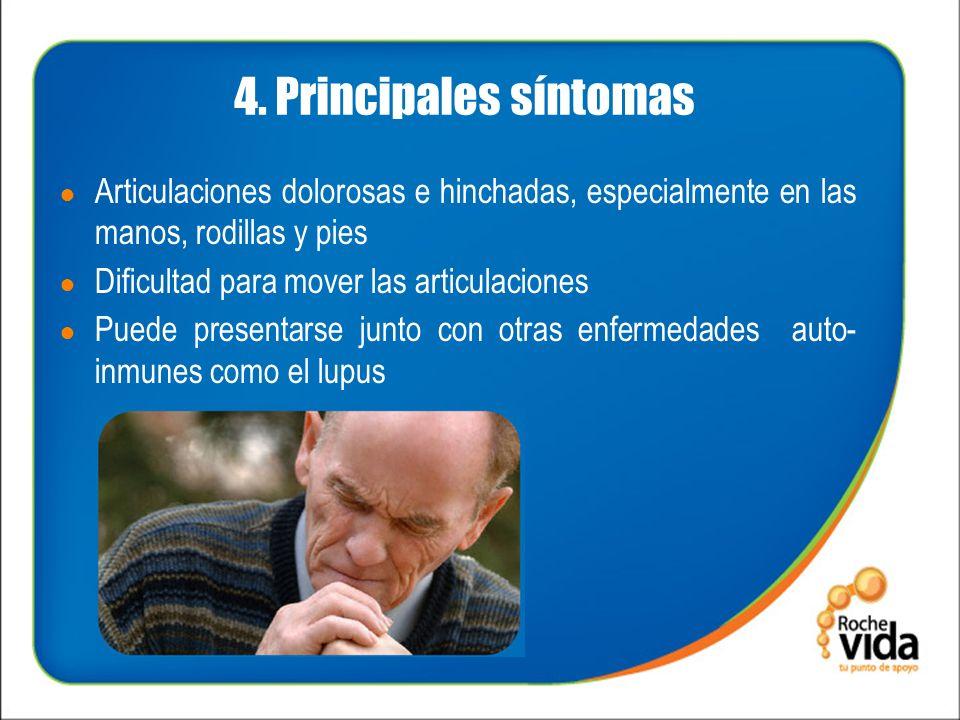 4. Principales síntomas Articulaciones dolorosas e hinchadas, especialmente en las manos, rodillas y pies.