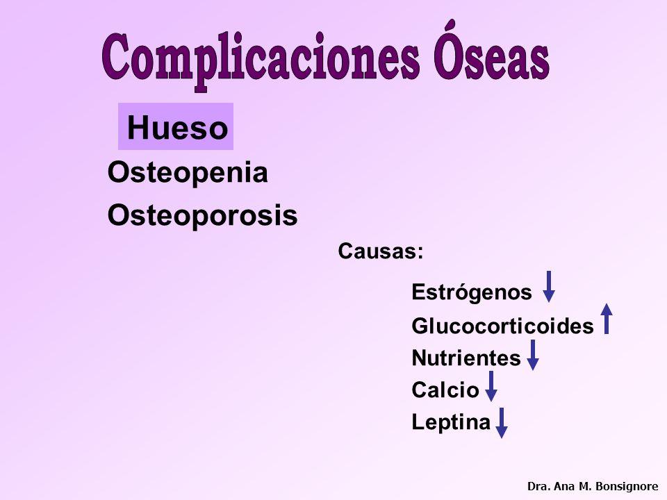 Complicaciones Óseas Hueso Osteopenia Osteoporosis Estrógenos Causas: