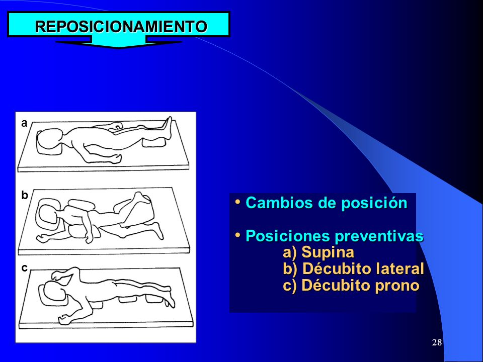 Posiciones preventivas a) Supina b) Décubito lateral c) Décubito prono