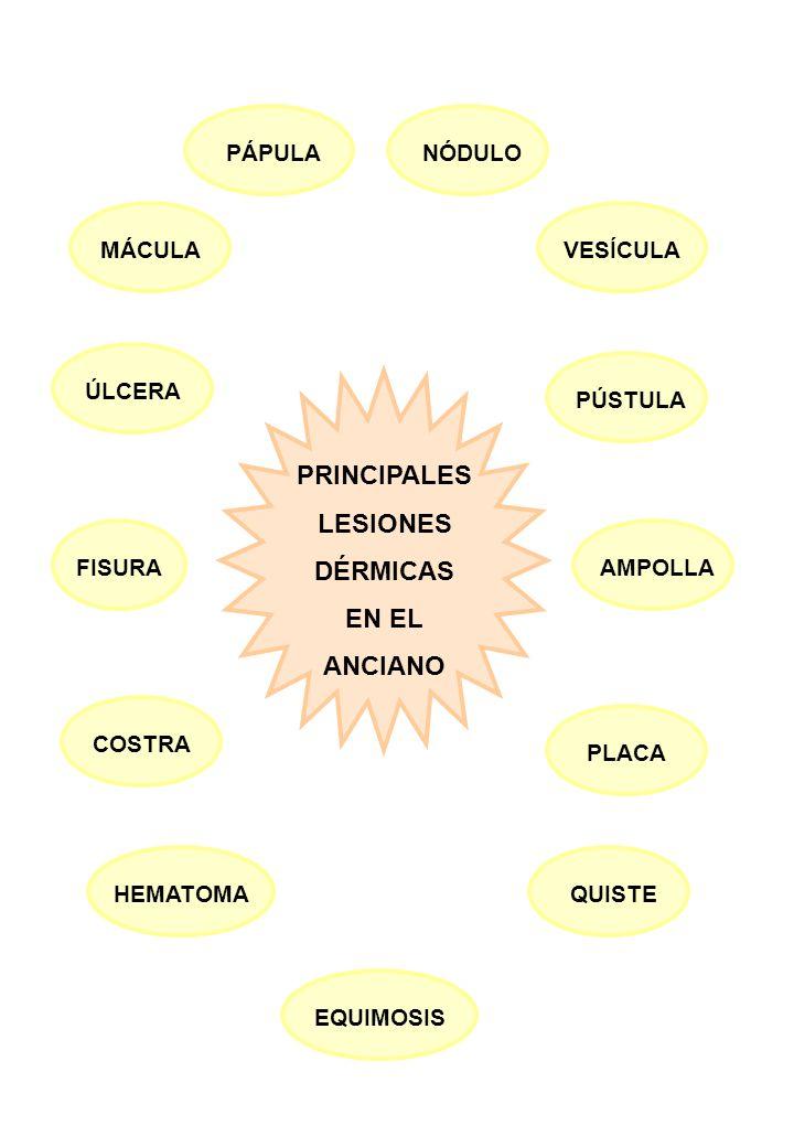 PRINCIPALES LESIONES DÉRMICAS