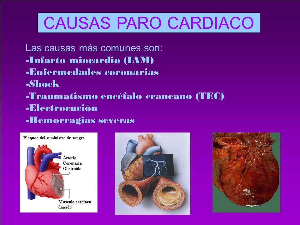 CAUSAS PARO CARDIACO Las causas más comunes son: