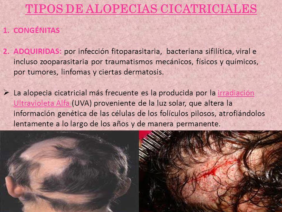 TIPOS DE ALOPECIAS CICATRICIALES