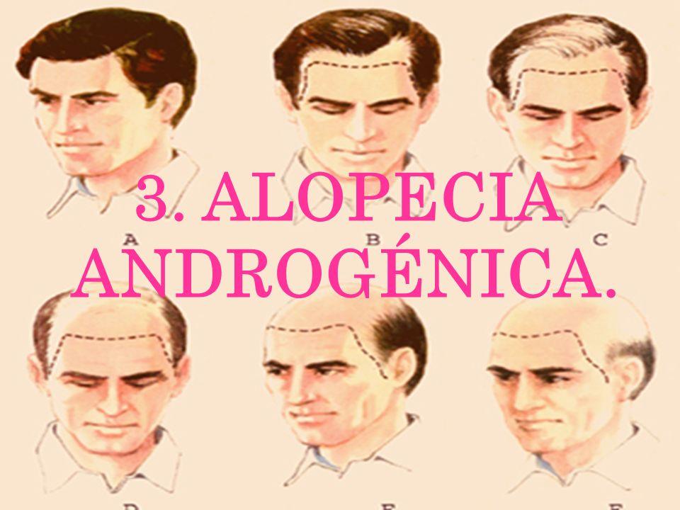 3. ALOPECIA ANDROGÉNICA.