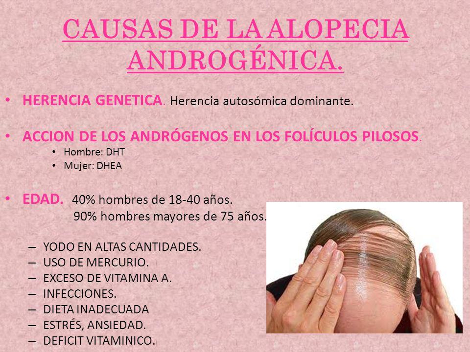 CAUSAS DE LA ALOPECIA ANDROGÉNICA.