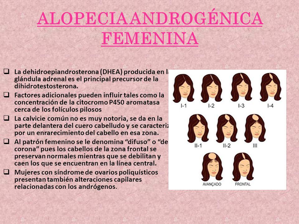 ALOPECIA ANDROGÉNICA FEMENINA