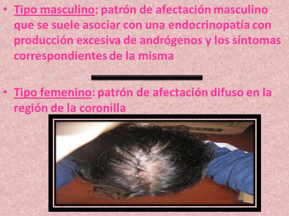 Tipo masculino: patrón de afectación masculino que se suele asociar con una endocrinopatía con producción excesiva de andrógenos y los síntomas correspondientes de la misma