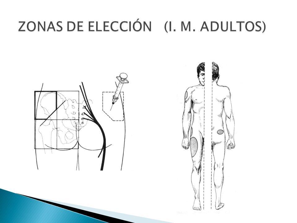 ZONAS DE ELECCIÓN (I. M. ADULTOS)