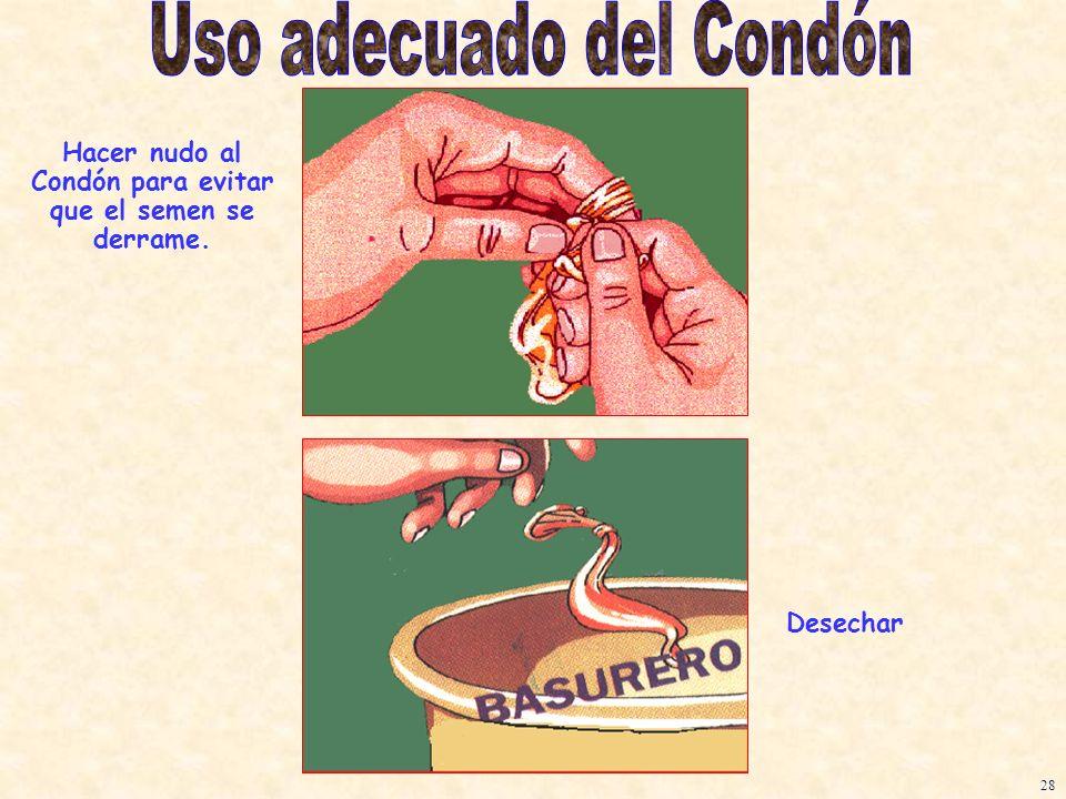 Hacer nudo al Condón para evitar que el semen se derrame.