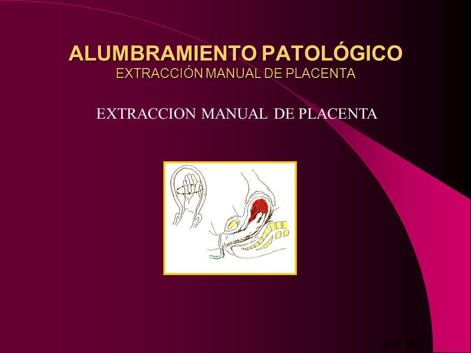 ALUMBRAMIENTO PATOLÓGICO EXTRACCIÓN MANUAL DE PLACENTA
