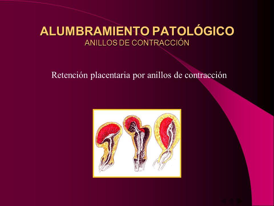 ALUMBRAMIENTO PATOLÓGICO ANILLOS DE CONTRACCIÓN