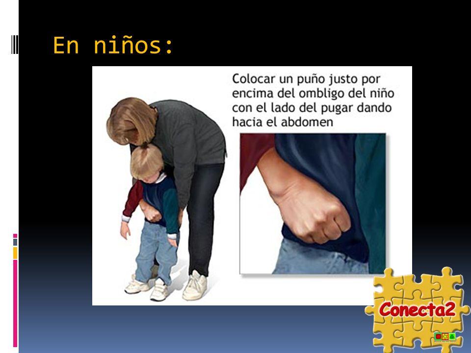 En niños: