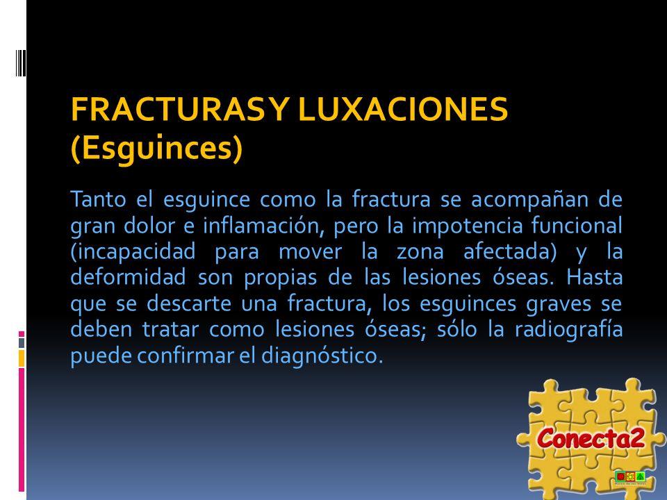 FRACTURAS Y LUXACIONES (Esguinces)