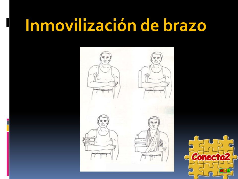 Inmovilización de brazo
