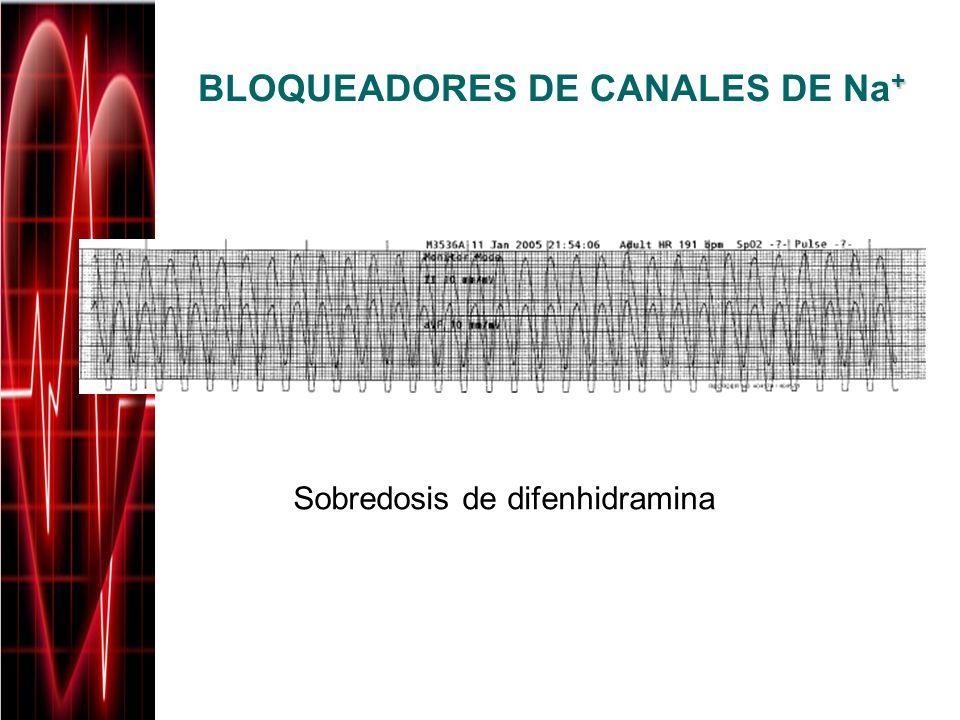 BLOQUEADORES DE CANALES DE Na+