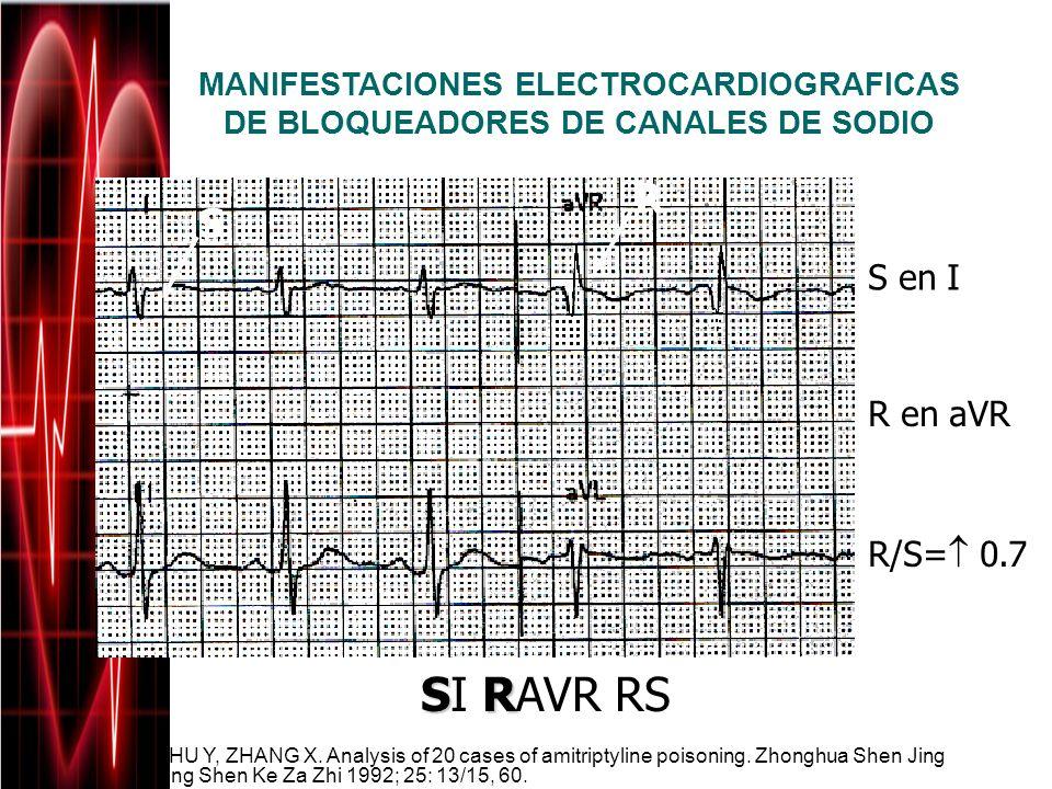 SI RAVR RS R S S en I R en aVR R/S= 0.7