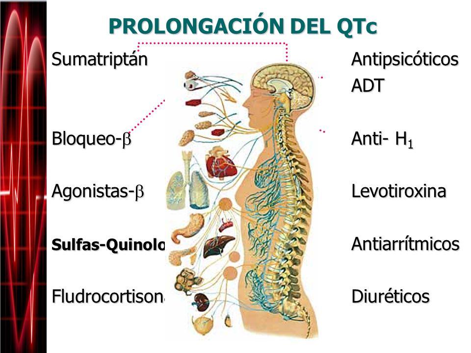 PROLONGACIÓN DEL QTc Sumatriptán Antipsicóticos ADT Bloqueo- Anti- H1