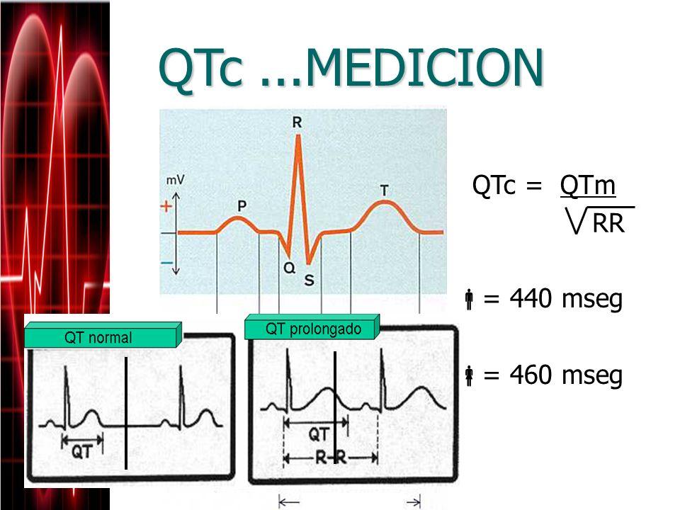 QTc ...MEDICION QTc = QTm = 440 mseg = 460 mseg RR
