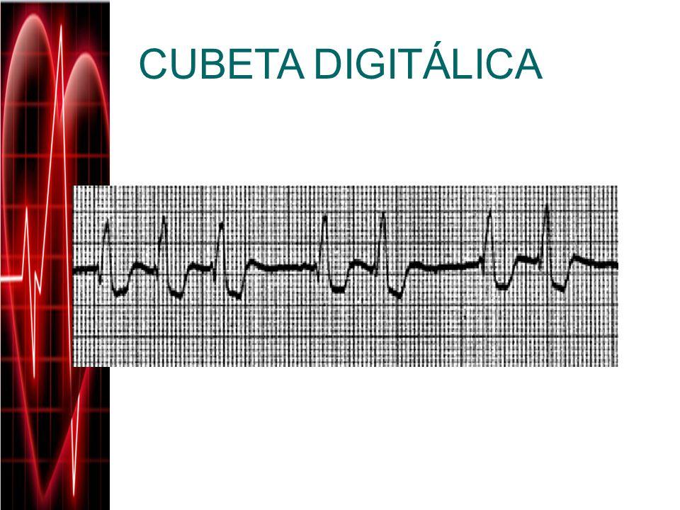 CUBETA DIGITÁLICA