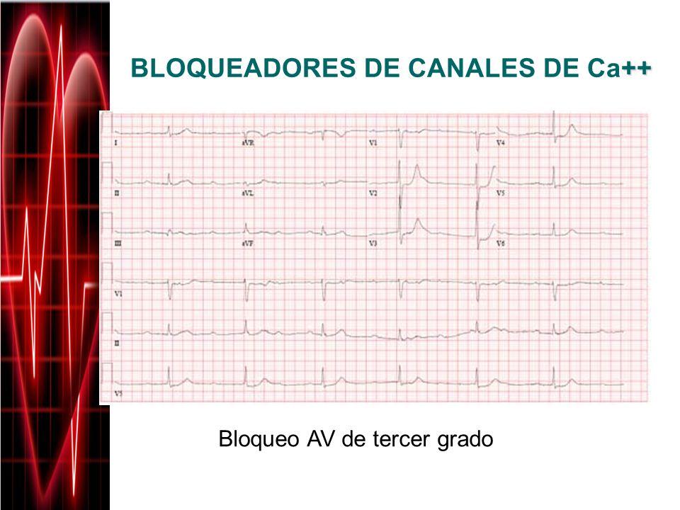BLOQUEADORES DE CANALES DE Ca++