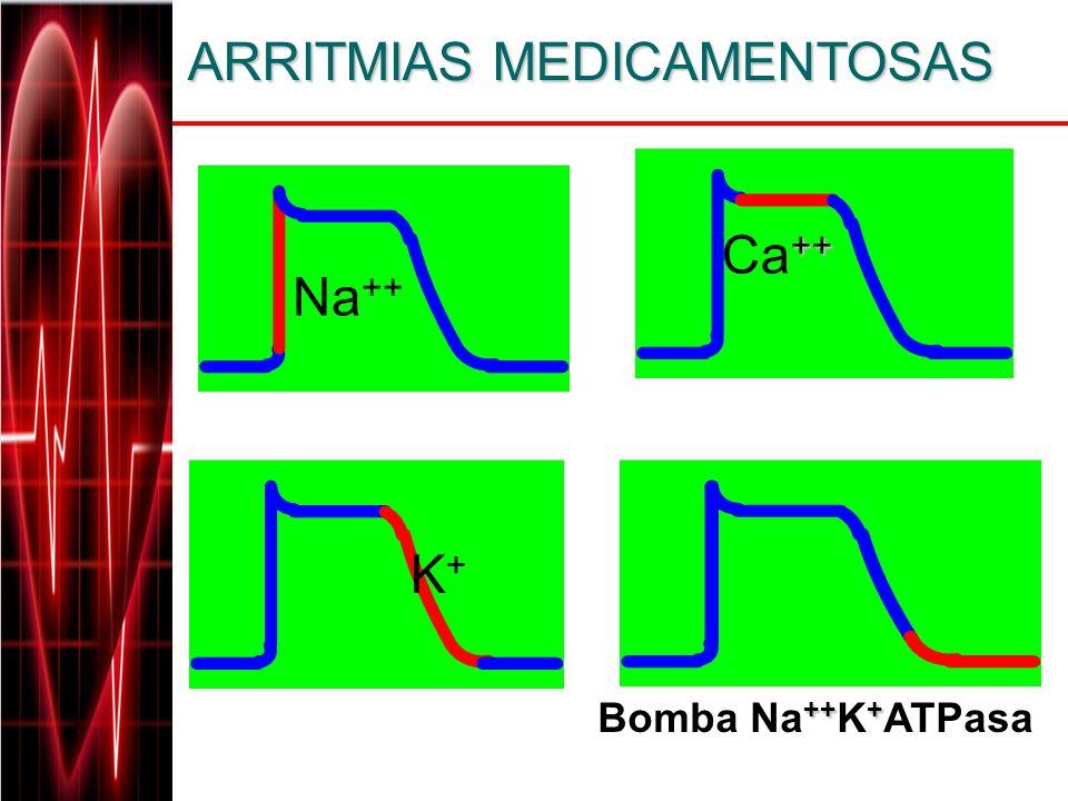 ARRITMIAS MEDICAMENTOSAS