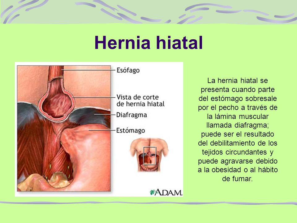 hiatal hernia essay A hiatal hernia, a hernia of the diaphragm, may be caused by obesity, pregnancy, aging, previous surgery, or just a congenital weakness of the muscles about 50% of all people with hiatal hernias do not have any symptoms.