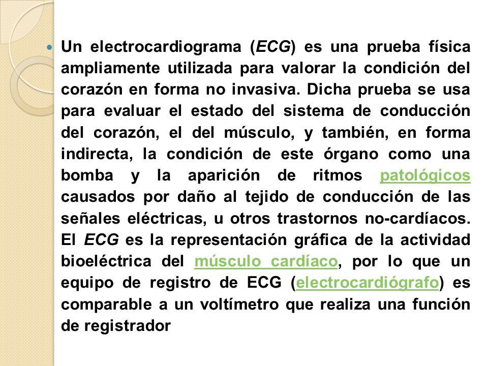 Un electrocardiograma (ECG) es una prueba física ampliamente utilizada para valorar la condición del corazón en forma no invasiva.