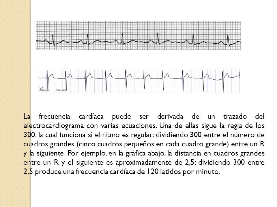 La frecuencia cardíaca puede ser derivada de un trazado del electrocardiograma con varias ecuaciones.