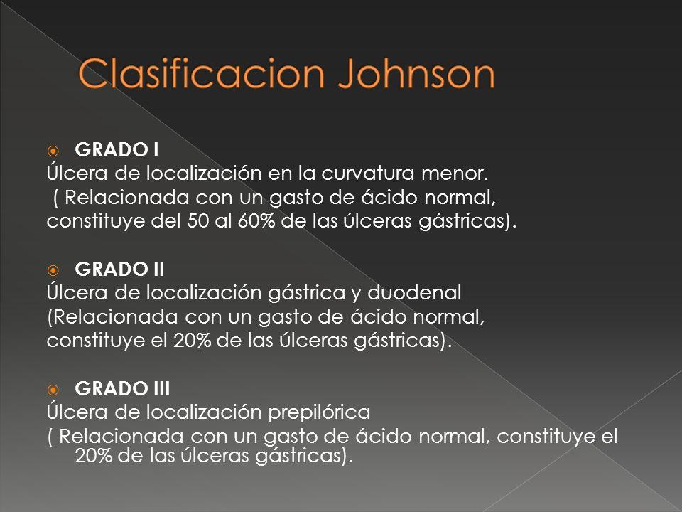 Clasificacion Johnson