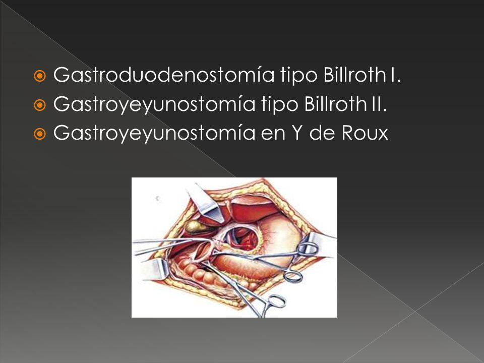 Gastroduodenostomía tipo Billroth I.